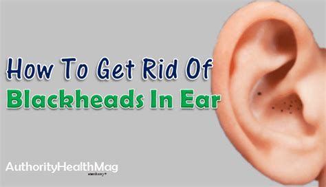 How To Get Rid Of Your Blackheads by How To Get Rid Of Blackheads In Ear Home Remedies