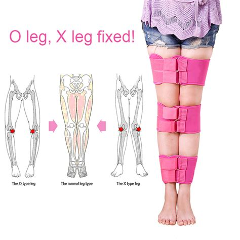Where Can I Buy Legs by Buy Wholesale Bowleg Correction From China Bowleg