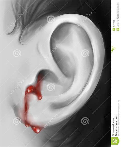 ear bleeding bleeding ear digital stock illustration image of image 45779893