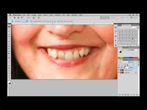 How To Fix Crooked Teeth At Home by How To Fix Crooked Teeth In Photoshop Tutorial