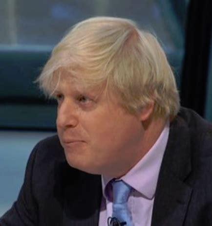 Boris Johnson Losing His Trademark Bouffant Hair?