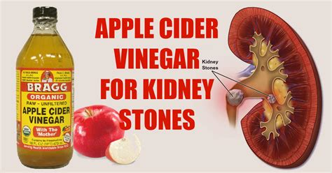 Apple Cider Vinegar Kidney Detox by 5 Ways To Use Apple Cider Vinegar To Dissolve Kidney Stones