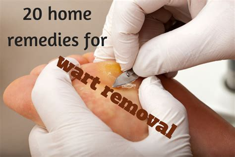 20 wart removal home remedies