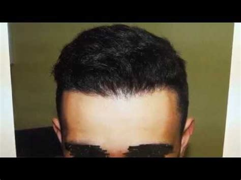 dr diep hair transplant reviews dr diep hair transplant cost search results hairstyle