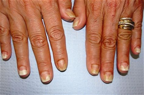 Nail Sting Plates In India