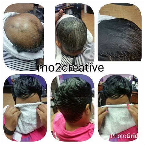sew ins for alopecia 384 best alopecia bald beauties images on pinterest