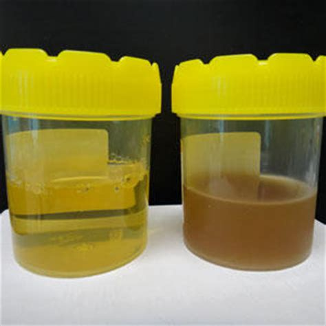 uti urine color what system does the kidneys belong to answers on
