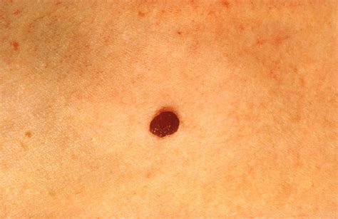 skin cancer color basic skin care tips signs of skin cancer moles and what