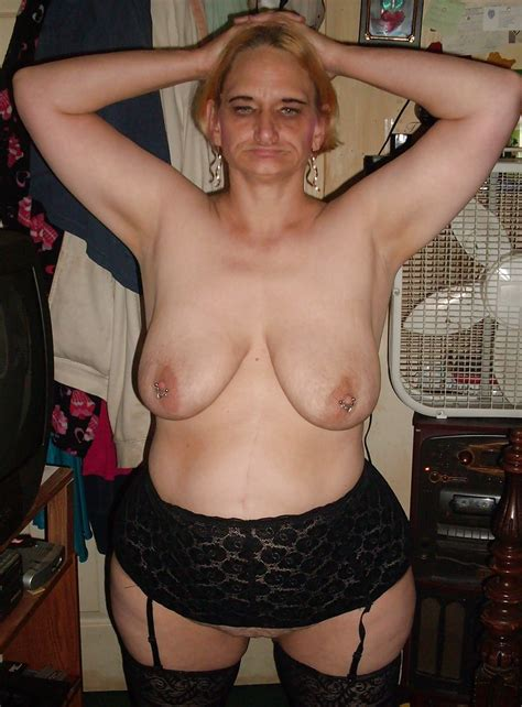 Mstretchm T In Gallery Stretchmarks On Mature Saggy