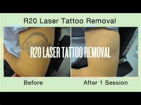 tattoo removal r20 r20 best laser removal disappearing ink nyc