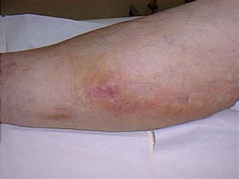 thrombophlebitis symptoms pictures causes treatment