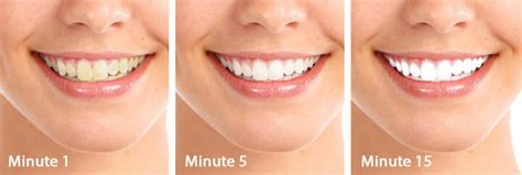 do teeth whitening lights work white light smile review does it work