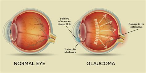 Home Office Meaning by Treating And Controlling Glaucoma Insight Vision Center