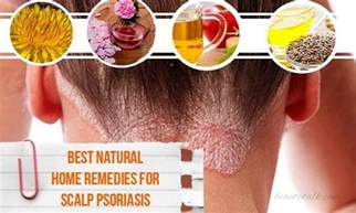 16 best home remedies for scalp psoriasis