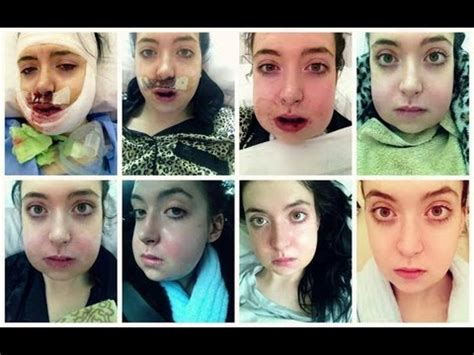 jaw surgery recovery timeline double jaw surgery double jaw surgery days 1 28 recovery clips youtube