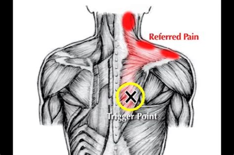 Laser Therapy Trigger Points Detox by Trigger Points Trigger Point