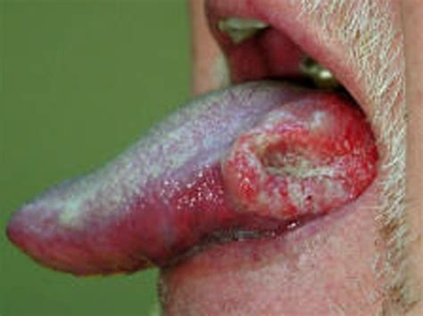 tumors pictures tongue cancer pictures