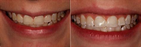 teeth whitening columbus ohio teeth whitening