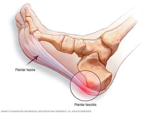 plantar fasciitis symptoms and causes mayo clinic