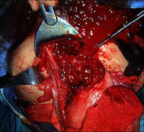 large blood clots after c section c section complications previous c section answers on