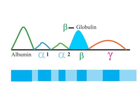 protein total serum protein serum electrophoresis total protein albumin and