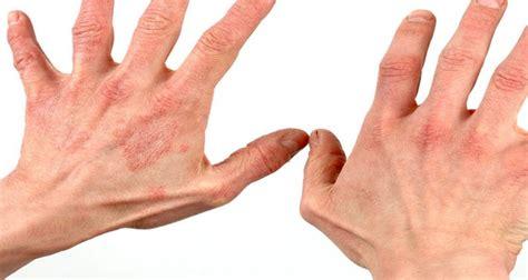 obat untuk alergi jelly gamat gold g obat untuk alergi paling aman