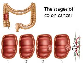 color cancer colon cancer treatment february 2013