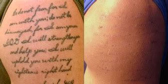 plastic surgery tattoo removal cost laser removal el paso tx las cruces nm