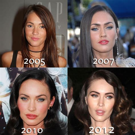 megan fox plastic surgery before and after botox nose
