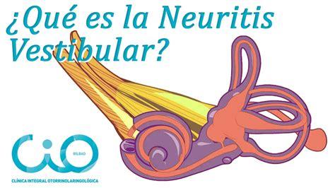 neuritis vestibular 191 neuritis vestibular 191 v 233 rtigo otorrinos cio bilbao