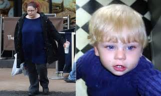 Richie Denies Gastric Bypass Surgery by Baby P S Tracey Connelly Denied Nhs Gastric Band