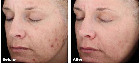 Paket Chemical Soft Peel Acne chemical peels la skinaesthetics
