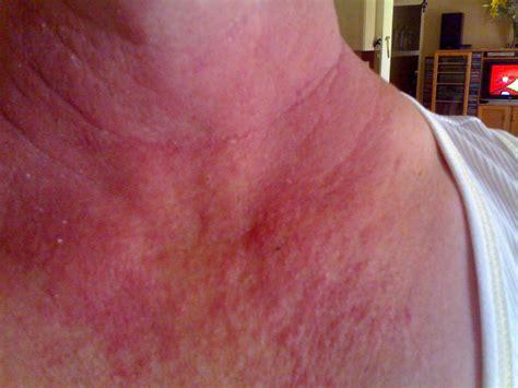 rash on neck itchy neck rash pictures photos