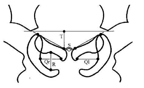 diagram showing  quotient  pelvic rotation qr ql  symphysis  scientific