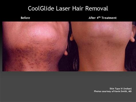 laser hair removal department of dermatology laser hair removal under chin the dermatology clinic