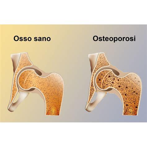 alimenti contro acidità klopfer basica previene acidit 224 sangue osteoporosi acido
