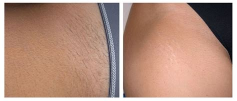 brazilian wax photos before and after hair removal before and after renova laser hair removal medspa