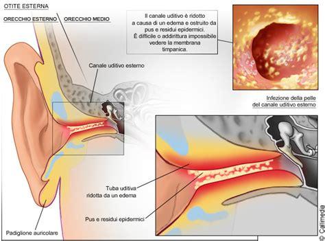 otite interna sintomi otite esterna e media cause sintomi e trattamento