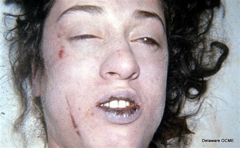 autopsies of famous people autopsy photos of famous people images on photobucket