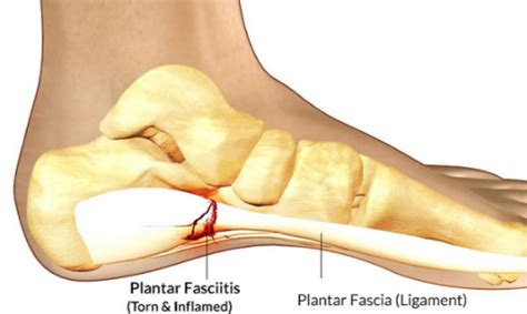 How Does Planters Fasciitis Last by What Does A Heel Spur Look Like Tips