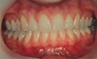 healthy gum color gingival descriptors at dalhousie studyblue