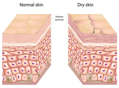 hydration vs moisture skin sensitive skin why moisturizers are not enough