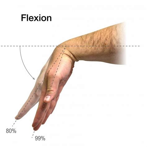 Flexi On wrist adduction pictures to pin on pinsdaddy