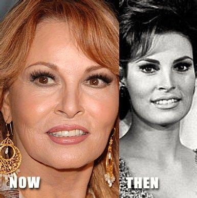 raquel welch exercise raquel welch beauty secrets before after photo plastic