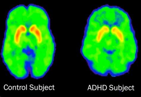 ADHD: Keeping It Real   Dan Bolton, LMHC
