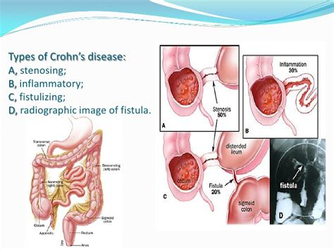 crohn s the other c word crohn s disease court reporting and custody battles books helminthes use in treatment of autoimmune disease