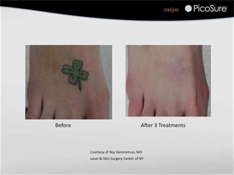 tattoo removal connecticut removal with picosure greenwich ct