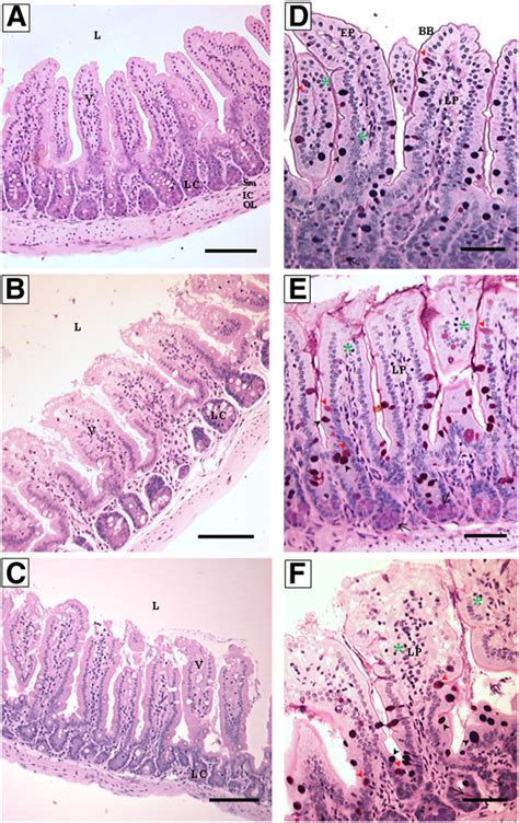 longitudinal section of small intestine photomicrographs of longitudinal sections of small