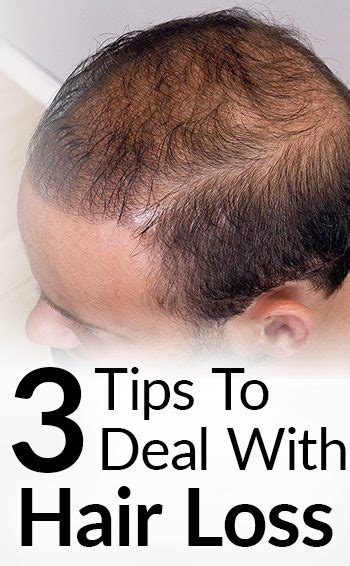 10 Tips On How To Cure Hair Loss by 3 Hair Loss Treatment Options Attract While