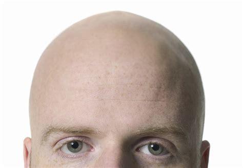bald head bald is beautiful quotes quotesgram